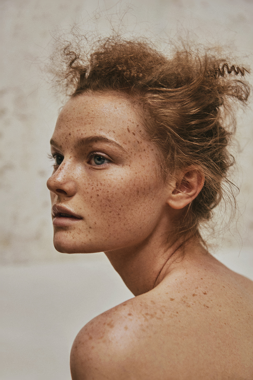 beauty freckles, SModa by photographer Daniel Scheel. | 8AM artist management